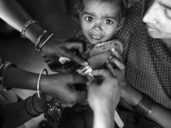 Child Malnutrition in India